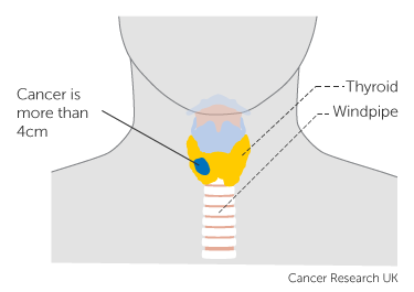 Diagram showing T3a thyroid cancer