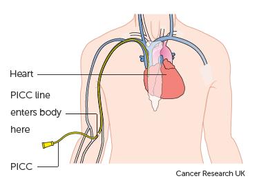 Diagram showing a PICC line