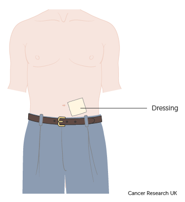 Diagram-showing-a-PleurX-drain-covered-by-a-dressing-when-not-draining.png