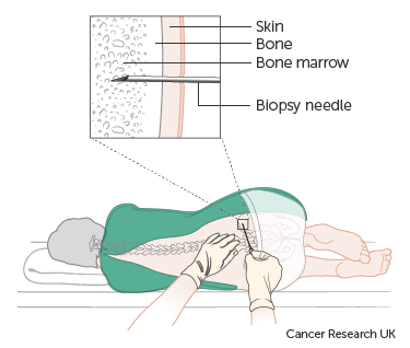 Diagram showing a bone marrow biopsy