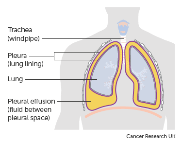 Diagram showing a build up of fluid in the lining of the lungs (pleural effusion)