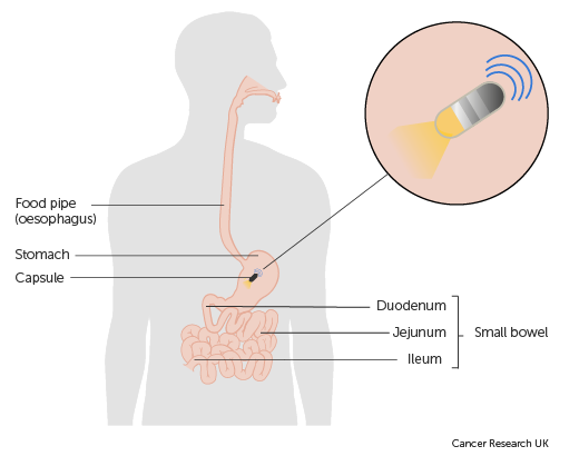 Diagram showing a capsule endoscopy