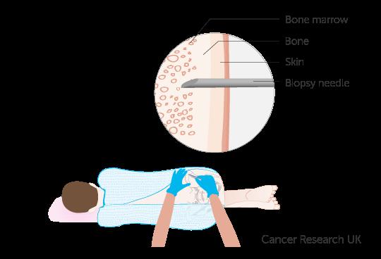 Diagram showing a childs bone marrow biopsy