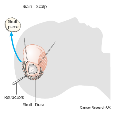Diagram showing a craniotomy