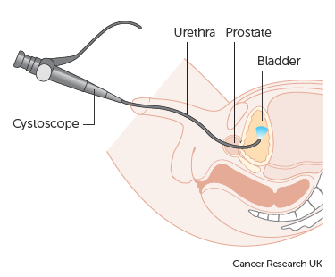 Diagram showing a cystoscopy for a man