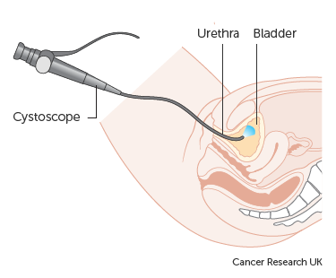 Diagram showing a cystoscopy for a woman