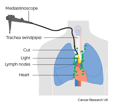 Diagram showing a mediastinoscopy