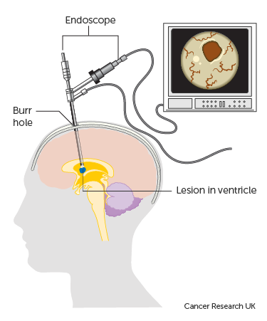 Diagram showing a neuroendoscopy