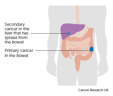 About Cancer Of Unknown Primary Cancer Of Unknown Primary Cup Cancer Research Uk