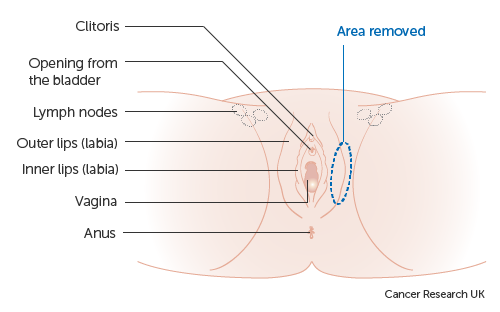 Diagram showing a wide local excision of the vulva