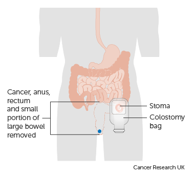 Coping With A Colostomy Anal Cancer Cancer Research Uk