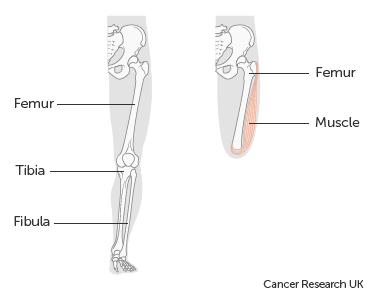 Diagram showing an above knee amputation