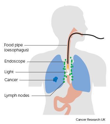 Diagram showing an endoscopic ultrasound to stage lung cancer