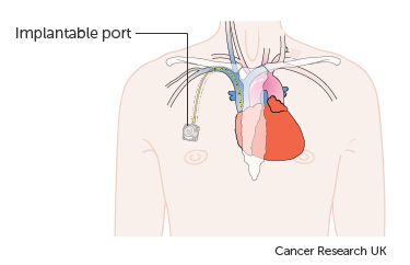 Diagram showing an implantable port