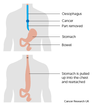 Diagram-showing-before-and-after-a-total-oesophagectomy.png
