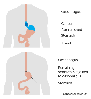 Diagram-showing-before-and-after-an-oesophago-gastrectomy.png