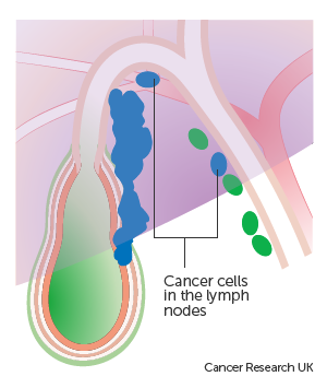 Diagram showing cancer cells in the lymph nodes near the gallbladder