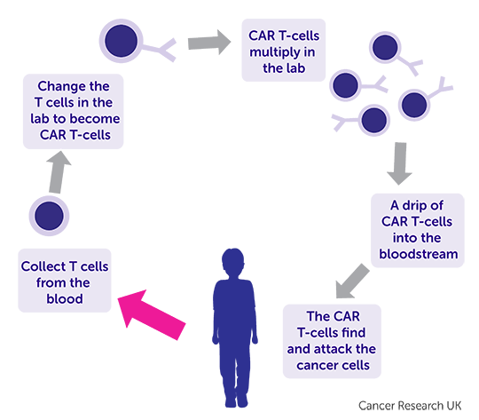 Diagram showing children's CAR -T cell therapy