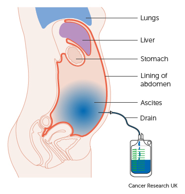 Diagram showing fluid (ascites) being drained from the abdomen