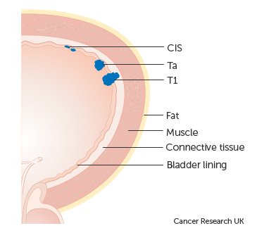 Diagram showing early stage bladder cancer