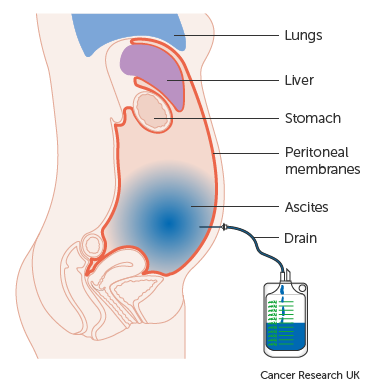 Treating fluid in the abdomen | Fluid in the Abdomen