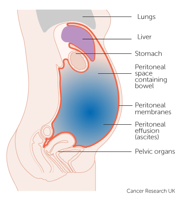 Diagram showing fluid in the abdomen