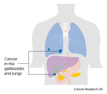 Diagram showing gallbladder cancer that has spread