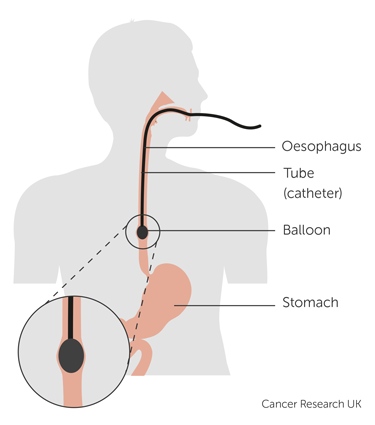 Diagram showing how a balloon is used to stretch the oesophagus