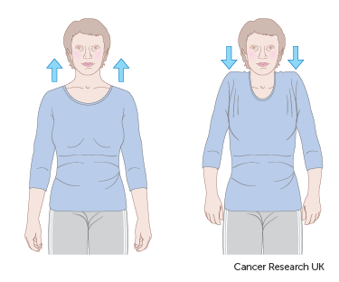 Diagram showing how to do shoulder shrugs after breast reconstruction surgery