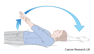 Diagram showing how to lift your arm over your head after breast reconstruction surgery