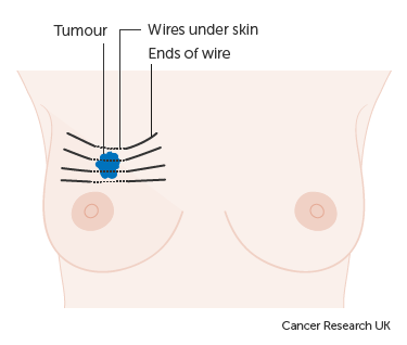Diagram showing how you have internal radiotherapy for breast cancer