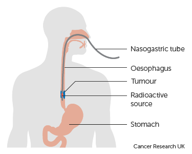 Diagram-showing-internal-radiotherapy-with-radioactive-source-through-a-NGT-tube.png