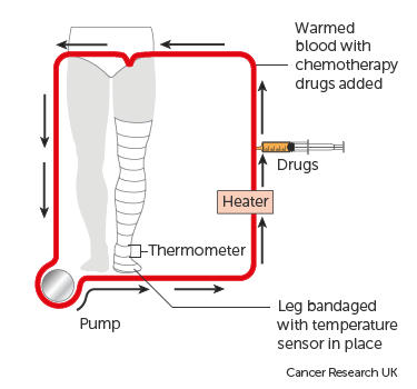Diagram showing isolated limb infusion