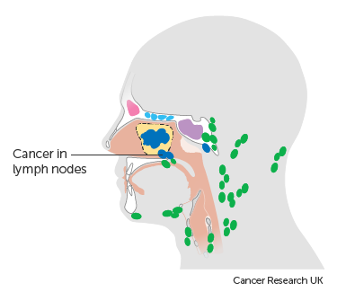 Diagram showing maxillary sinus cancer that has spread to the lymph nodes