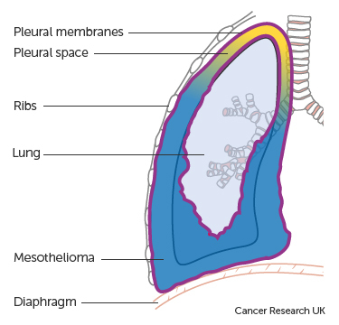 Diagram showing mesothelioma in the chest pleural mesothelioma