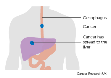 Diagram-showing-oesophageal-cancer-that-has-spread-to-the-liver.png