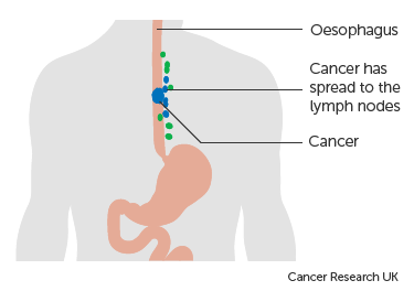 Diagram-showing-oesophageal-cancer-that-has-spread-to-the-lymph-nodes.png