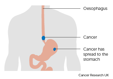 Diagram-showing-oesophageal-cancer-that-has-spread-to-the-stomach.png