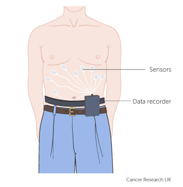 Diagram showing sensors and data recorder - capsule endoscopy