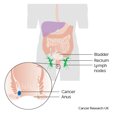 Diagram showing stage 1 anal cancer