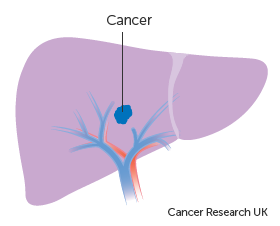 Diagram showing stage 1 liver cancer