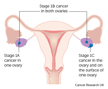 Diagram showing stage 1 ovarian cancer