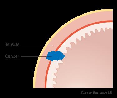 Diagrama care prezintă stadiul 1 cancer de stomac (stadializare clinică) 2 din 2