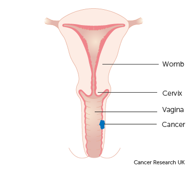 Diagram showing stage 1 vaginal cancer