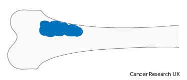 Diagram showing stage 1A bone cancer