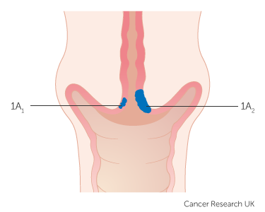 Stage 1 | Cervical cancer | Cancer Research UK