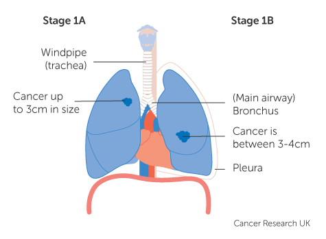 Diagram showing stage 1A and 1B lung cancer