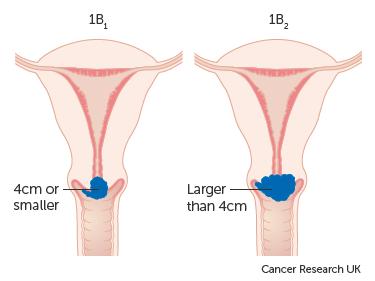 Diagram showing stage 1B cervical cancer