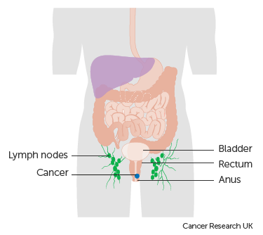 Diagram showing stage 2 anal cancer