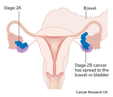 Diagram showing stage 2A & 2B ovarian cancer